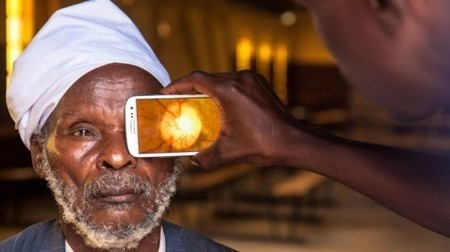 Smartphone-based kit makes eye tests cheap and portable | GizMag.com | News, Interesting, Health | Life,  Eye, Hobby (NI-L- -) | Scoop.it