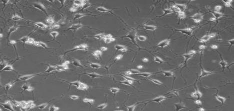 Stem cells from teeth can make brain-like cells | Social Neuroscience Advances | Scoop.it