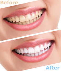 Dental Hospital Delhi: Puzzled about Teeth Whitening | Dental Clinic in New Delhi | Scoop.it