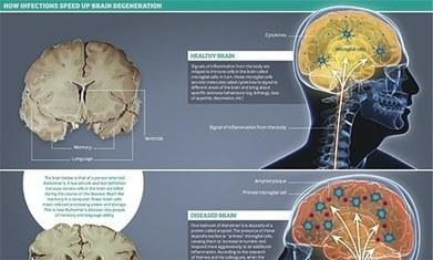 Could arthritis drug combat Alzheimer's? | Medicine in Pictures | Scoop.it