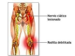 Dolor Del Nervio Ciatico - Tu Zona Lumbar   Tu Zona Lumbar   Scoop.it