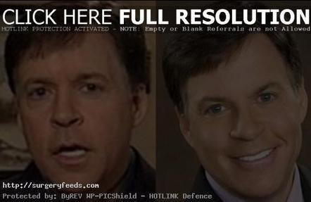 Bob Costas Plastic Surgery Before and After Photos | Plastic Surgery Before and After Photos | Scoop.it