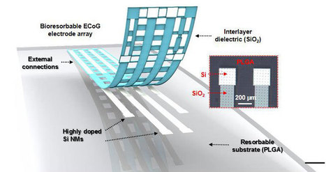 Researchers Develop Dissolvable Electronic Brain Implants | | Shaping the Future of Medical Technology | Scoop.it