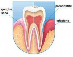 Studio Dentistico il Mulino: Newsletter di Igiene Orale e Prevenzione   lifestyle, wellness & more   Scoop.it
