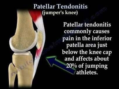 Knee Tendonitis | Take Care of Your Knees | Scoop.it