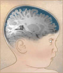 Excessive cerebrospinal fluid and enlarged brain size in infancy are potential biomarkers for autism | Autism | Scoop.it