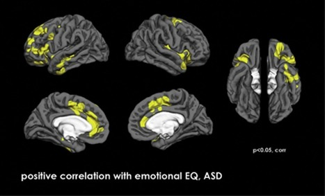 Study: Emotional contagion for pain is intact in autism spectrum disorders.   Making of fashion   Scoop.it