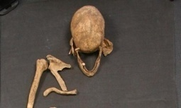 Man who died 1,500 years ago may have brought leprosy strain to UK | Physical Science - SHS | Scoop.it