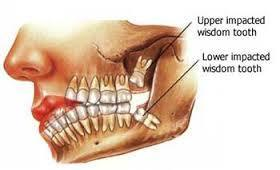 Wisdom Tooth Removal Clinic Vancouver | Vancouver Harbour Dental | Scoop.it