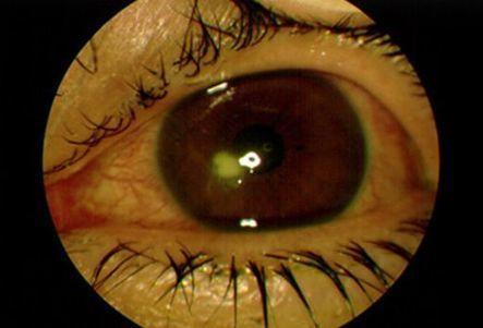 Eye Health | Corneas & Contacts | Scoop.it