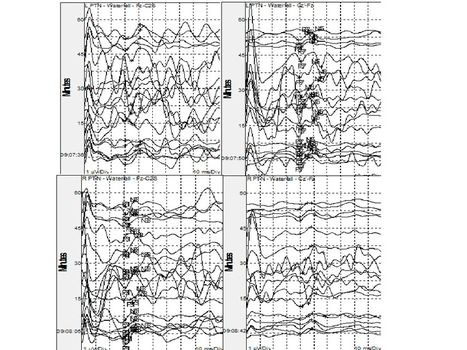 How To Handle Variable Intraoperative Somatosensory Evoked Potentials | Intraoperative Neuromonitoring | Scoop.it