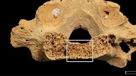 Oldest Evidence of Human Cancer Discovered in African Tomb | Reading and Writing | Scoop.it