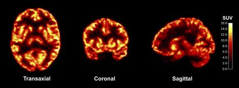 Scientists apply new imaging tool to common brain disorders | Sustain Our Earth | Scoop.it
