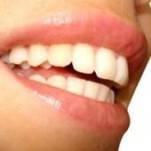 4 alimentos que blanquean tus dientes naturalmente   alimentos   Scoop.it