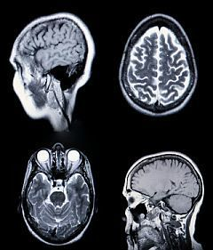» Personality Reflects Size of Respective Brain Area - Psych Central News | Creative Viral | Scoop.it
