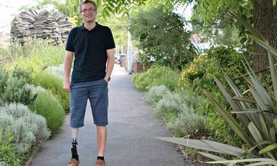 Amputee hails new prosthetic: 'It's like they've given me my leg back' | Cyborg Lives | Scoop.it
