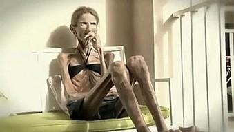 Buzz: La femme la plus anorexique du monde 25kgs !! (video) | cotentin webradio Buzz,peoples,news ! | Scoop.it