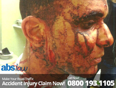 Violent Road Accident Faced By Foreigner Student In WhiteChapel | My Website / Blog | Traffic Accident Claim UK | Scoop.it