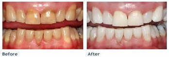 Teeth Whitening Solihull | AlexWilliam46 | Scoop.it