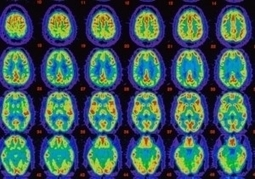 The Top 10 Brain Science and Psychology Stories of 2012 - Forbes | Cognitive Fitness and Brain Health | Scoop.it