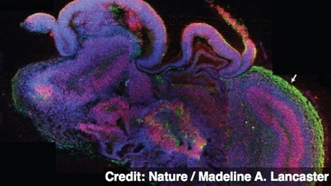 Scientists Build Tiny Human Brains in the Lab | GCST-Science, Medicine & Pharmaceutical News | Scoop.it