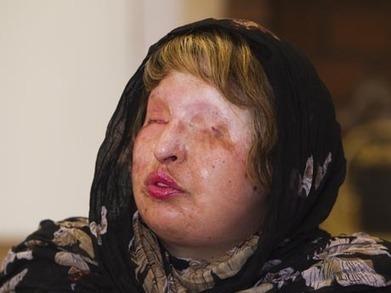 Irão: Mulher perdoa agressor e já não o cega com ácido | Do it or Leave it | Scoop.it