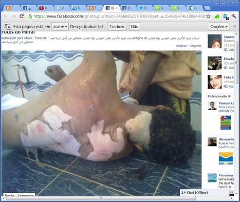20 AMNESIA By ICC UN Amnesty HRW Int. Comunity Media In Face of Libya-n Rebels & NATO Crimes #FreeSaif #Saif | Seif al Islam al Gaddafi | Scoop.it