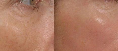 Fraxel Laser Treatment: Results You Can See and Feel | Dentaderm ... | botox sydney | Scoop.it