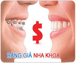 Cạo vôi răng nhanh HIỆU QUẢ răng sạch mảng bám tại nha khoa Kim   tocmaidephanquoc   Scoop.it
