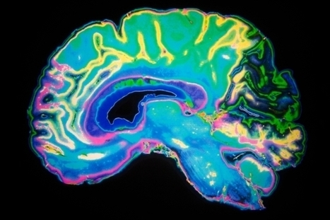 Worldwide Brain-Mapping Project Sparks Excitement--and Concern | Estudios de futuro | Scoop.it
