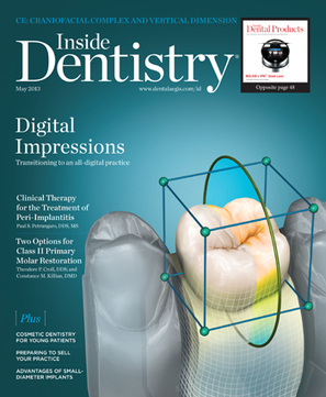 Digital Impressions with Sirona's CEREC® Omnicam   Word of Mouth   Dental Industry   Scoop.it
