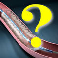 Angioplasty and Stents Inappropriate Only 4% of the Time | Burt's Stent Blog | Realms of Healthcare and Business | Scoop.it