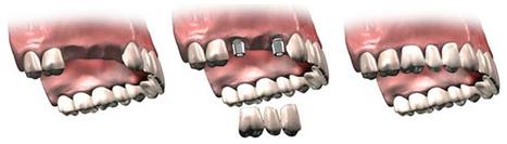 Best Denatal clinic in noida & root canal treatmen | Dental Care in Noida | Scoop.it