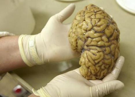 Scientists find gene linking brain's grey matter to intelligence | Reuters | Sociologie - Innovation - Tranformation | Scoop.it