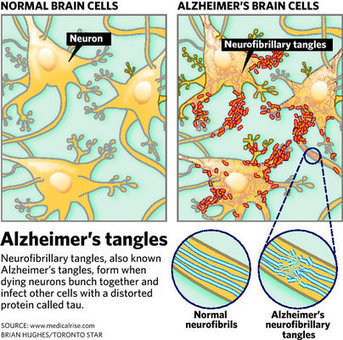 Alzheimer's discovery could curb spread of disease | Vulbus Incognita Magazine | Scoop.it
