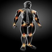 Treating Back Pain Related To A Car Accident | AMIG | Scoop.it