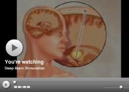 PARKINSON - Santé blog - Santé log | Neurologie S.V.T | Scoop.it