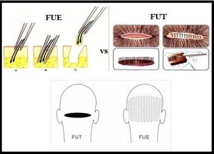 FUE Hair Transplant vs FUT Hair Transplant | Prohair Clinic | Scoop.it