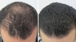 Case Study: Hair Loss Treatment Achieves Terrific Outcome | Hair Regrowth | Scoop.it