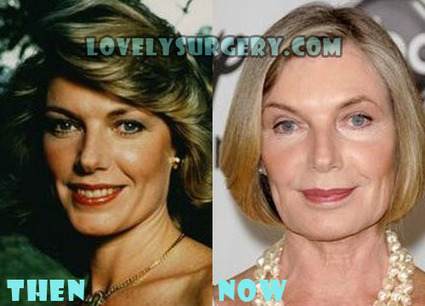 Susan Sullivan Plastic Surgery Before and After Photo | Celebrity Plastic Surgery | Scoop.it