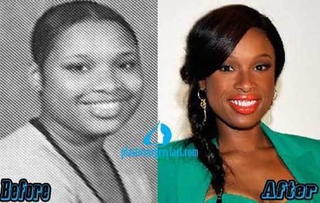 Jennifer Hudson Plastic Surgery Before and After Photos — Plastic Surgery Facts | Celebrity Plastic Surgery News | Scoop.it