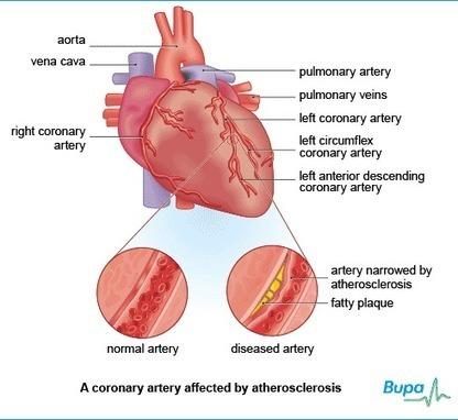 Coronary heart disease | Bupa UK | Understanding Heart Disease for Carers | Scoop.it