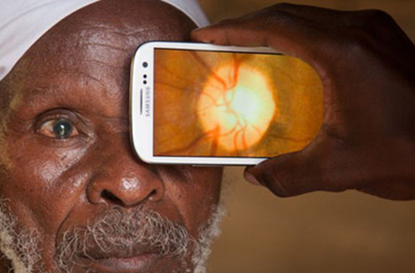 The mobile optometrist: Examining your Eyes with Apps | Tutorials | Scoop.it