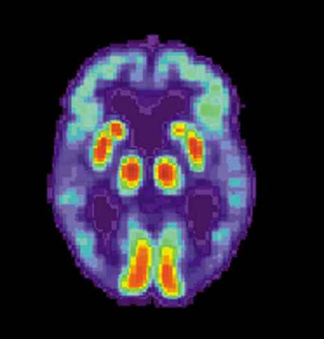 Ultrasound Restores Memory To Mice With Alzheimer's   Science & technology   Scoop.it