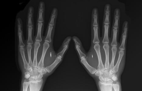 I Implanted an RFID Tag in My Hand. Here's Why — Backchannel — Medium | RFID Solutions | Scoop.it