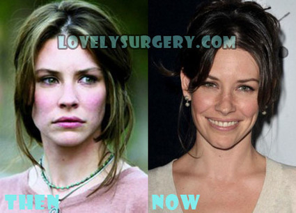 Evangeline Lilly Plastic Surgery Before and After Photos | Celebrity Plastic Surgery | Scoop.it
