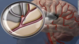 Drop Everything You Thought You Knew About a Stroke - LOWERING CHOLESTEROL GUIDE | Health & Cholesterol | Scoop.it