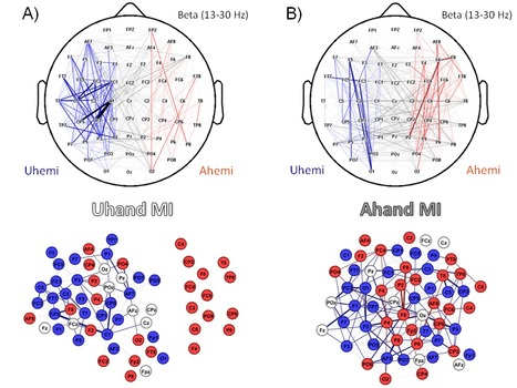Multiscale topological properties of functional brain networks during motor imagery after stroke | Network science to explore the brain | Scoop.it