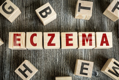Prevent Eczema Outbreaks and Seek Treatment from Urgent Care Centers | US Health Works - Seattle (Denny) | Scoop.it