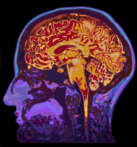 The Limits of Current Neuroscience | Coaching & Neuroscience | Scoop.it